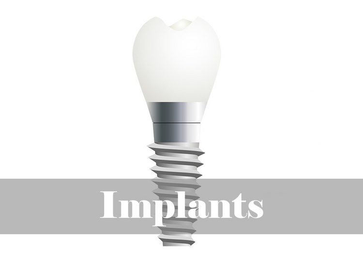 5_implants.jpg