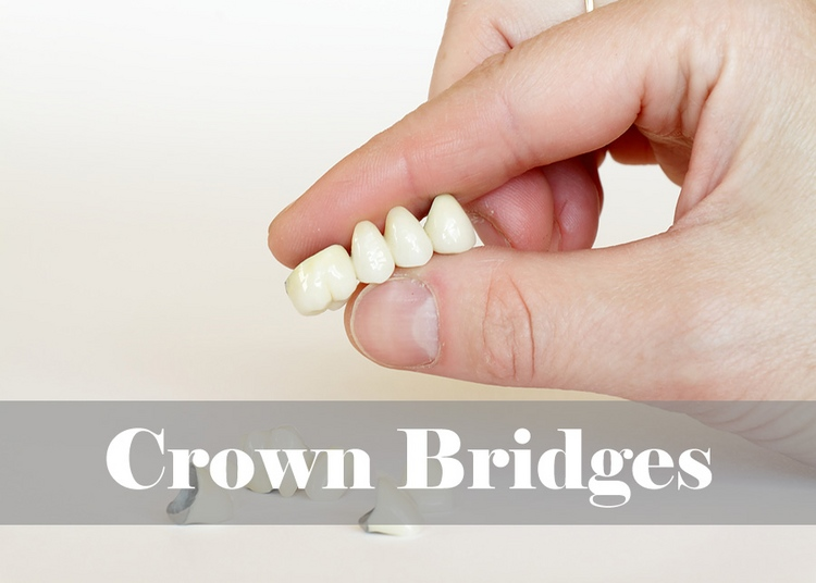 9_crown_bridges.jpg