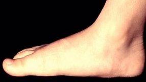 Ukiah Podiatrist | Ukiah Flatfoot (Fallen Arches) | CA | Dr. Michael Cosenza, DPM |