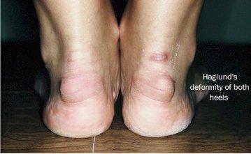 Ukiah Podiatrist | Ukiah Haglund's Deformity | CA | Dr. Michael Cosenza, DPM |