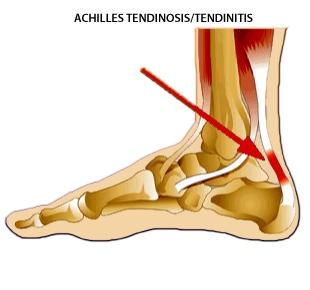 Ukiah Podiatrist | Ukiah Achilles Tendonitis | CA | Dr. Michael Cosenza, DPM |